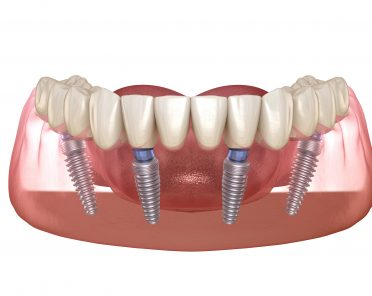 Implant Dentures – Everything You Need To Know