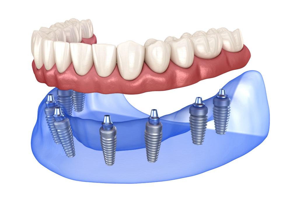 Implants Dentures